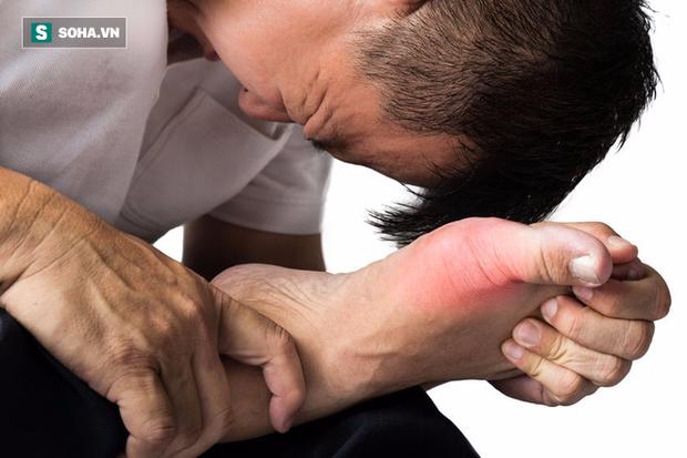 Căn bệnh nhà giàu gây đau đớn khủng khiếp: Đừng quên 10 nguyên tắc để phòng tránh - Ảnh 1.