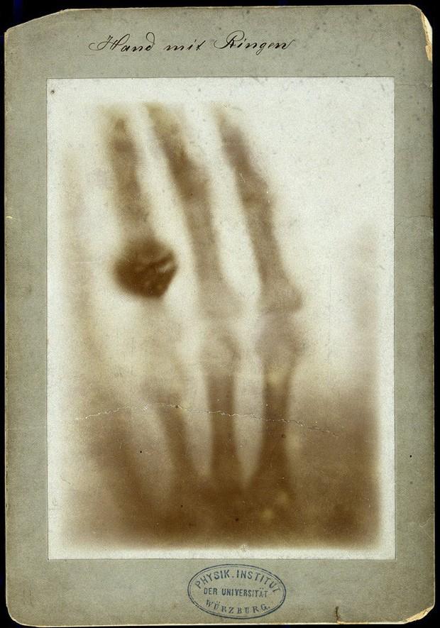 Tấm ảnh X-quang đầu tiên của nhân loại này đã làm vợ của nhà phát minh ra nó vô cùng hoảng hốt - Ảnh 1.