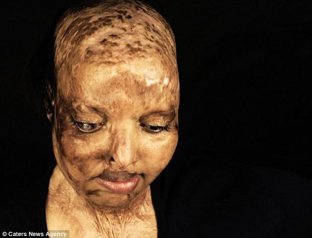 10 năm sau vụ tạt axit kinh hoàng, cô gái trẻ đã tìm được tình yêu của đời dù phải mang gương mặt ác quỷ - Ảnh 1.