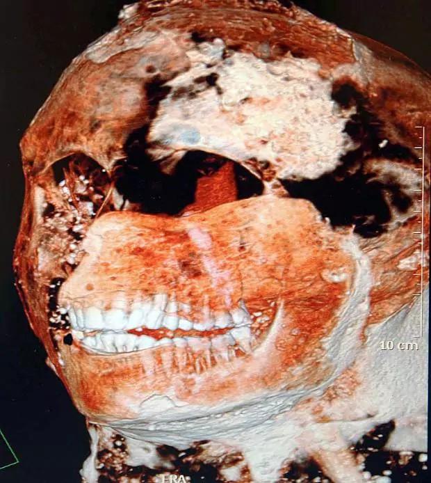 Không có kem đánh răng và bàn chải, người La Mã vẫn có hàm răng trắng đẹp chỉ vì chế độ ăn đáng học tập - Ảnh 2.