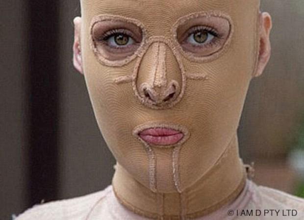 Từng bị đánh ghen, thiêu sống đến mức hủy hoại cả dung nhan, 5 năm sau người phụ nữ này đã xinh đẹp trở lại - Ảnh 3.