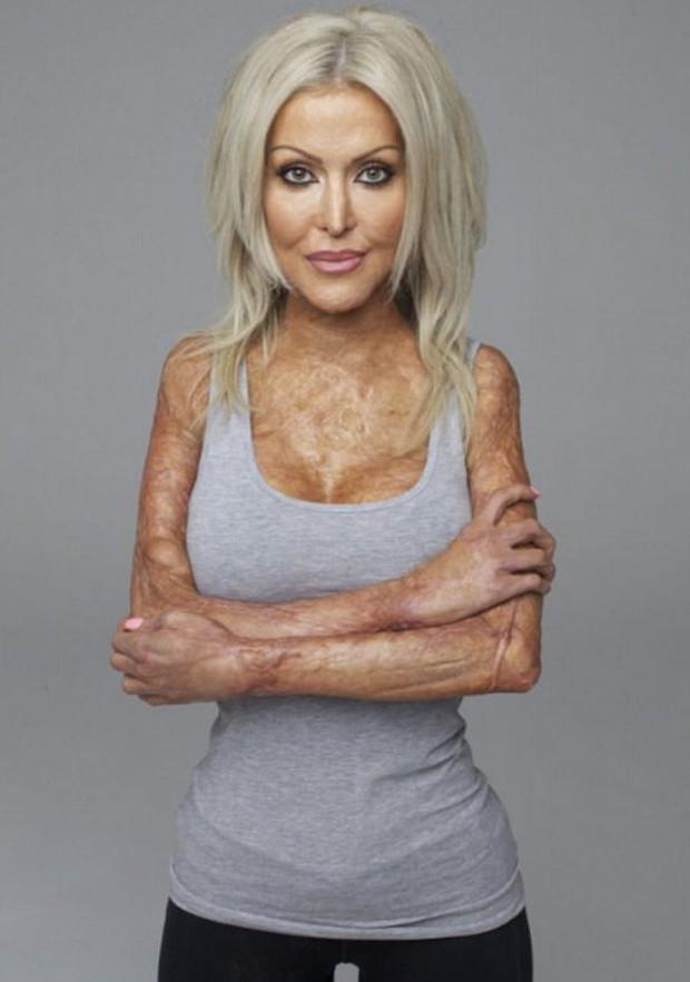 Từng bị đánh ghen, thiêu sống đến mức hủy hoại cả dung nhan, 5 năm sau người phụ nữ này đã xinh đẹp trở lại - Ảnh 8.