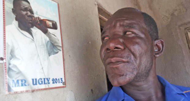Gặp anh William Masvinu - người đàn ông tự hào đăng quang ngôi vị Xấu nhất Zimbabwe suốt 4 năm ròng - Ảnh 2.