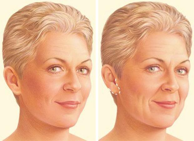 Xem quy trình phát rợn này, dám chắc bạn sẽ chẳng dám đi phẫu thuật căng da mặt nữa - Ảnh 4.