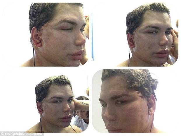 Tiêm filler căng da mặt quá tay, da mặt búp bê Ken phồng rộp như bị bỏng, mũi bị thủng một lỗ - Ảnh 6.
