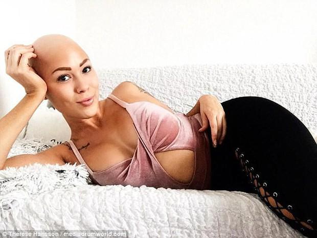 Tưởng mình bị ung thư khi tóc rụng dần, 12 năm sau, cô trở thành một người mẫu xinh đẹp với chiếc đầu trọc lóc - Ảnh 1.