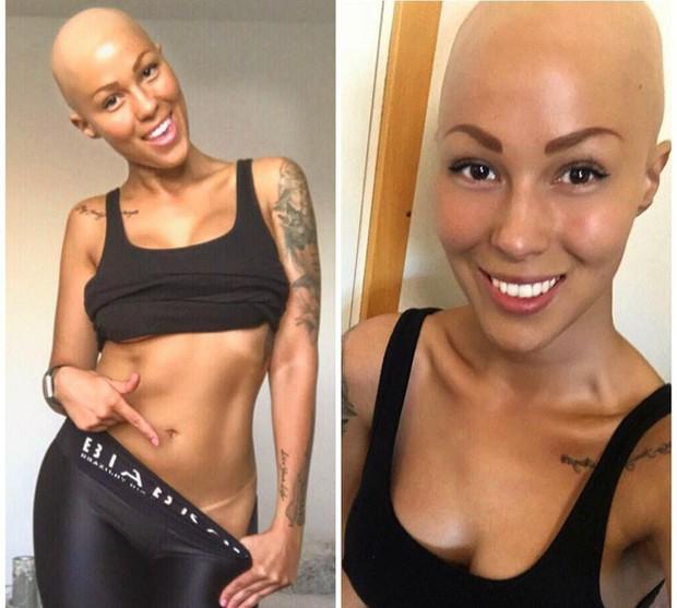 Tưởng mình bị ung thư khi tóc rụng dần, 12 năm sau, cô trở thành một người mẫu xinh đẹp với chiếc đầu trọc lóc - Ảnh 2.