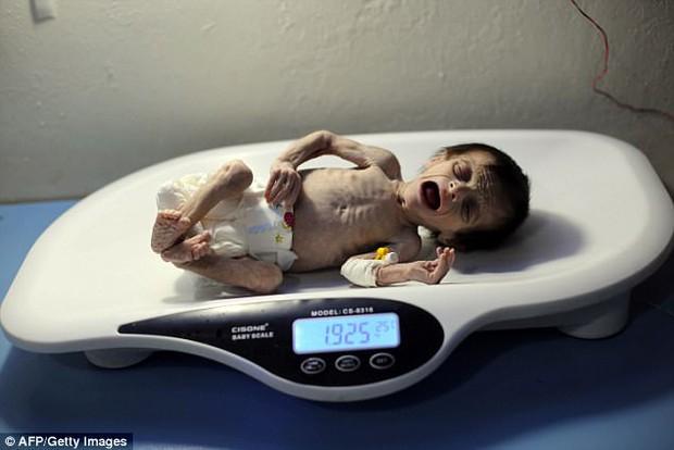 Hình ảnh em bé Syria suy dinh dưỡng, gầy trơ xương khiến cả thế giới rúng động - Ảnh 5.