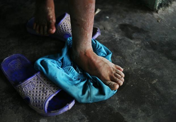Hà Nội: Tận cùng nỗi đau, sự khốn khổ của một gia đình có nhiều người tâm thần - Ảnh 11.