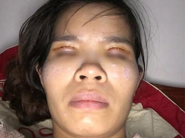 Là tiểu phẫu nhưng cắt mí hay bóc mỡ bọng mắt cũng có thể gây ra những hậu quả nhìn kinh khủng như thế này - Ảnh 12.