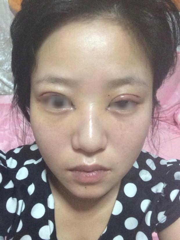 Là tiểu phẫu nhưng cắt mí hay bóc mỡ bọng mắt cũng có thể gây ra những hậu quả nhìn kinh khủng như thế này - Ảnh 13.