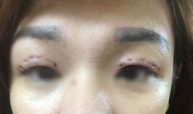 Là tiểu phẫu nhưng cắt mí hay bóc mỡ bọng mắt cũng có thể gây ra những hậu quả nhìn kinh khủng như thế này - Ảnh 15.