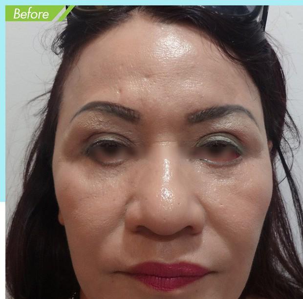 Là tiểu phẫu nhưng cắt mí hay bóc mỡ bọng mắt cũng có thể gây ra những hậu quả nhìn kinh khủng như thế này - Ảnh 16.