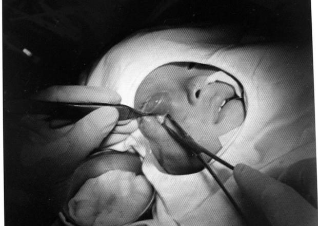 TP.HCM: Mẹ chủ quan không điều trị đầy đủ viêm xoang ở mũi cho con, bé trai 16 tháng tuổi suýt mù mắt phải - Ảnh 3.