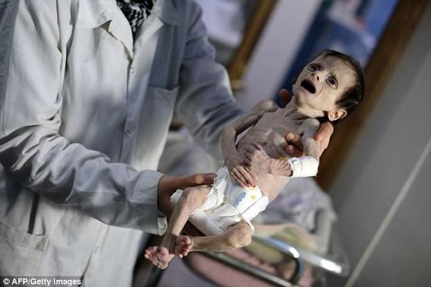 Hình ảnh em bé Syria suy dinh dưỡng, gầy trơ xương khiến cả thế giới rúng động - Ảnh 3.