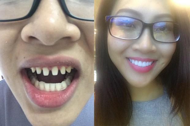 Nếu tháo hết răng sứ, liệu có ai dám nhìn Nguyễn Thị Thành khi cười? - Ảnh 3.