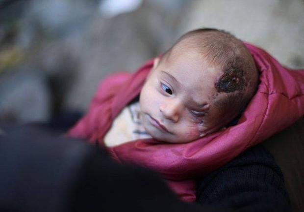 Syria: Xót thương bé 3 tháng tuổi chỉ còn một mắt - Ảnh 3.