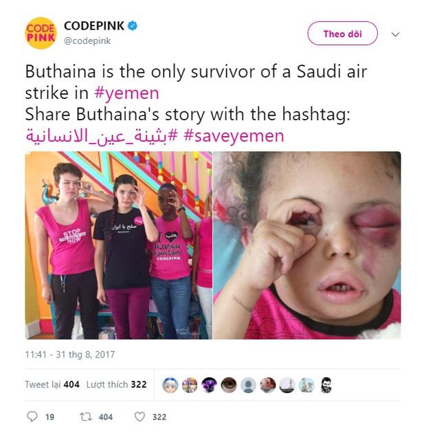 Hình ảnh cô bé 5 tuổi khiến cả thế giới phải sững sờ  trước thảm hoạ nhân đạo tại quê hương Yemen - Ảnh 4.