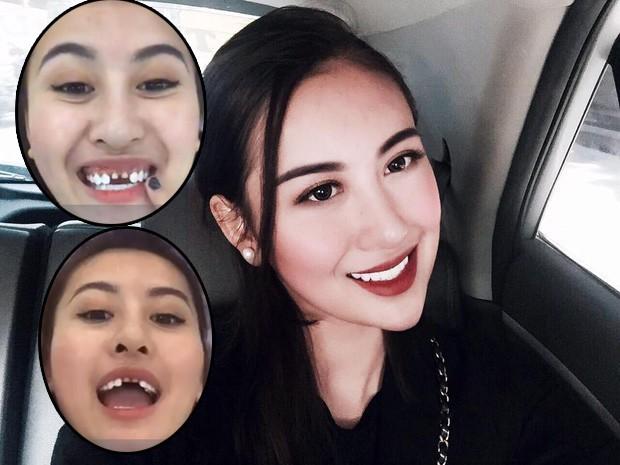 Nếu tháo hết răng sứ, liệu có ai dám nhìn Nguyễn Thị Thành khi cười? - Ảnh 4.