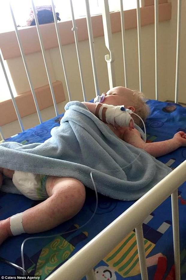 Bé trai 16 tháng tuổi suýt mất mạng vì nhiễm loại virus nguy hiểm chỉ sau 1 nụ hôn của người lớn - Ảnh 3.