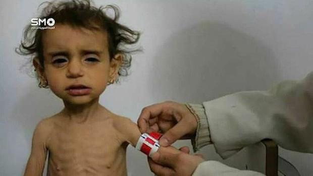 Cạn lương thực, người dân Syria phải lục thùng rác - Ảnh 4.