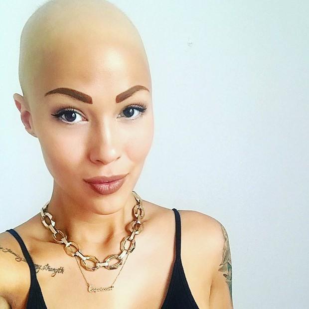 Tưởng mình bị ung thư khi tóc rụng dần, 12 năm sau, cô trở thành một người mẫu xinh đẹp với chiếc đầu trọc lóc - Ảnh 4.