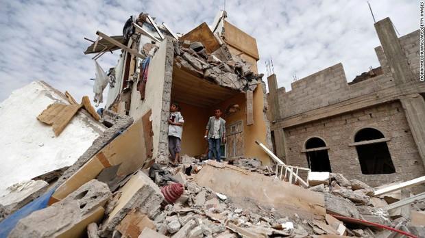Hình ảnh cô bé 5 tuổi khiến cả thế giới phải sững sờ  trước thảm hoạ nhân đạo tại quê hương Yemen - Ảnh 5.