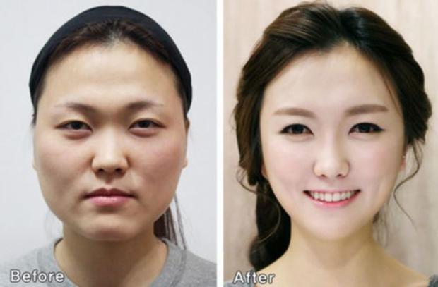 Kimchi woman: Cách dân Hàn Quốc gọi các cô nàng nghiện thẩm mỹ, mê hàng hiệu và đào mỏ đàn ông giàu có - Ảnh 5.