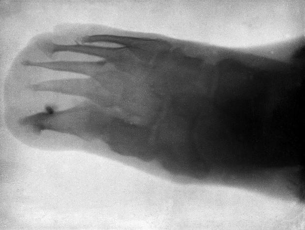 Tấm ảnh X-quang đầu tiên của nhân loại này đã làm vợ của nhà phát minh ra nó vô cùng hoảng hốt - Ảnh 5.