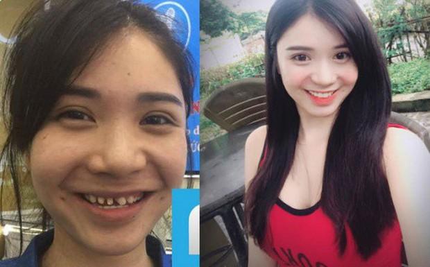 Nếu tháo hết răng sứ, liệu có ai dám nhìn Nguyễn Thị Thành khi cười? - Ảnh 5.