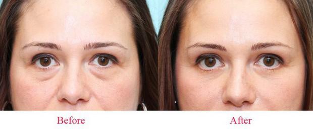 Là tiểu phẫu nhưng cắt mí hay bóc mỡ bọng mắt cũng có thể gây ra những hậu quả nhìn kinh khủng như thế này - Ảnh 5.