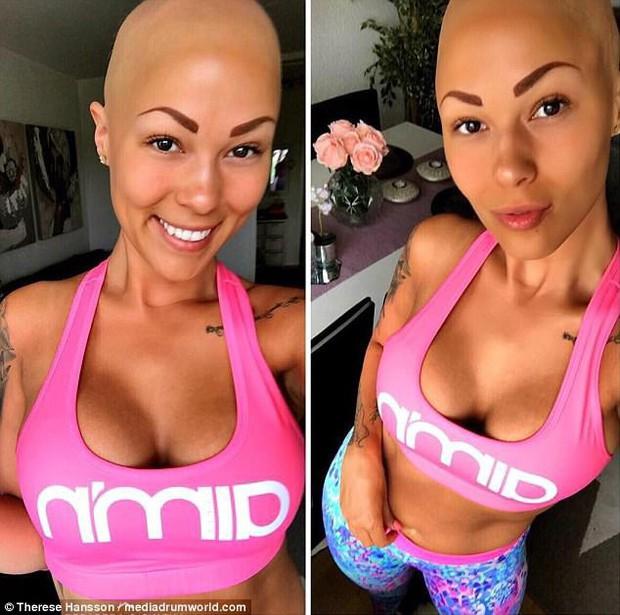 Tưởng mình bị ung thư khi tóc rụng dần, 12 năm sau, cô trở thành một người mẫu xinh đẹp với chiếc đầu trọc lóc - Ảnh 5.