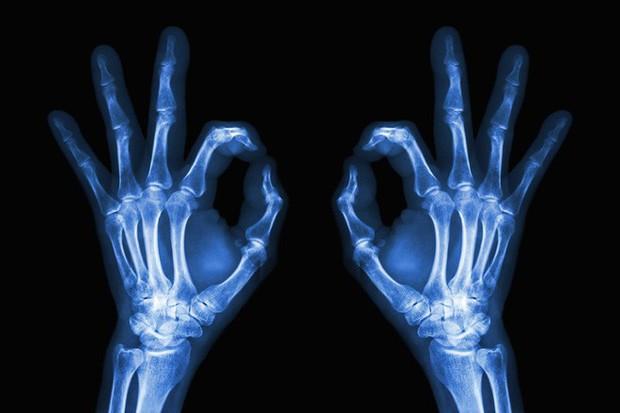Tấm ảnh X-quang đầu tiên của nhân loại này đã làm vợ của nhà phát minh ra nó vô cùng hoảng hốt - Ảnh 6.