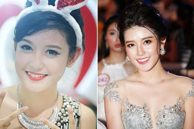 Nếu tháo hết răng sứ, liệu có ai dám nhìn Nguyễn Thị Thành khi cười? - Ảnh 7.