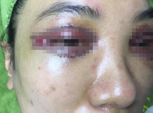 Là tiểu phẫu nhưng cắt mí hay bóc mỡ bọng mắt cũng có thể gây ra những hậu quả nhìn kinh khủng như thế này - Ảnh 8.