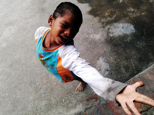 Hà Nội: Tận cùng nỗi đau, sự khốn khổ của một gia đình có nhiều người tâm thần - Ảnh 8.