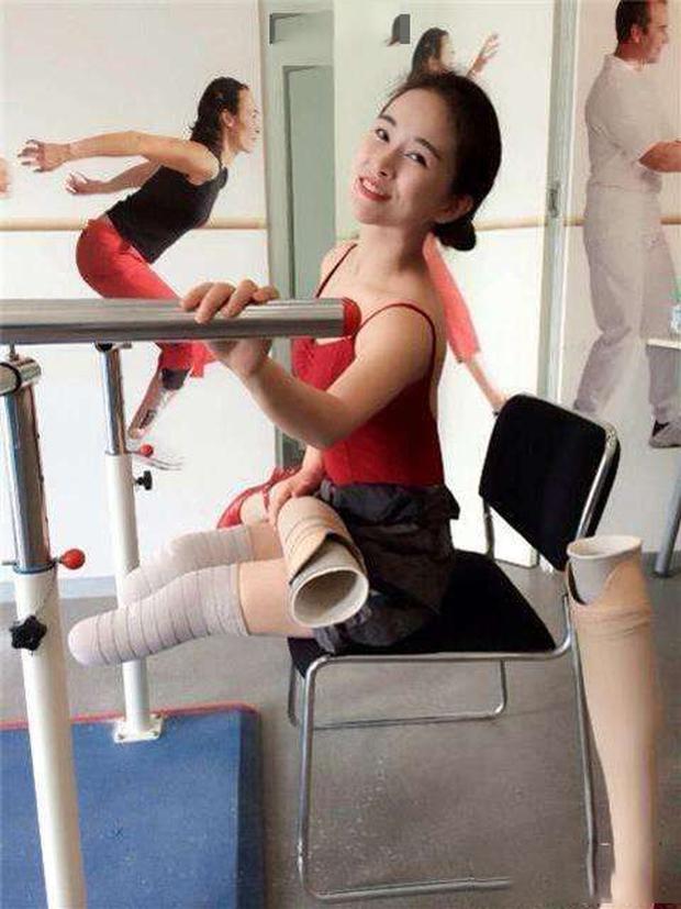 Cuộc đời đầy bão giông của vũ công xinh đẹp: Mất con, bị cưa chân, còn bị chồng bỏ rơi - Ảnh 9.