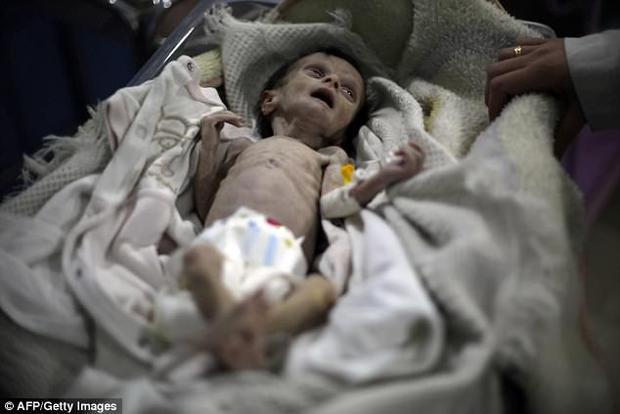 Hình ảnh em bé Syria suy dinh dưỡng, gầy trơ xương khiến cả thế giới rúng động - Ảnh 4.