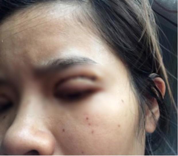 Là tiểu phẫu nhưng cắt mí hay bóc mỡ bọng mắt cũng có thể gây ra những hậu quả nhìn kinh khủng như thế này - Ảnh 11.