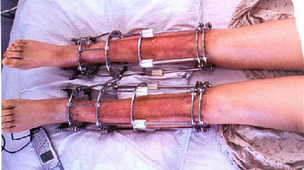 Lý do bạn cần cân nhắc thật kỹ trước khi quyết định thực hiện phẫu thuật kéo dài chân - Ảnh 4.