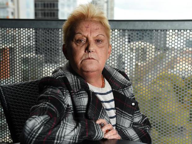 Nhận tội sau 33 năm hãm hiếp và sát hại bé gái 6 tuổi, hung thủ bất ngờ bị bạn tù tấn công dã man - Ảnh 13.