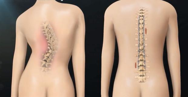 Xem quy trình phẫu thuật nắn cột sống đau nhức nhối khiến bạn chẳng bao giờ dám ngồi sai tư thế nữa - Ảnh 13.