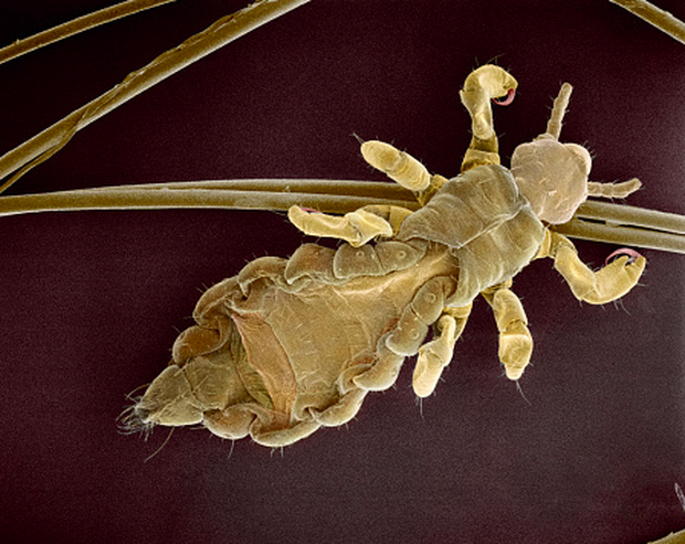 Đây là bộ mặt thật của sinh vật đang sống quanh ta khiến ai xem cũng muốn xỉu - Ảnh 2.