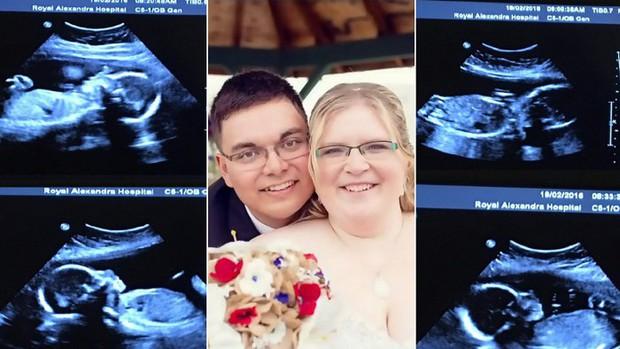 Vừa nhận tin mang bầu 4 đứa con cùng lúc, bà mẹ lại sốc hơn nữa khi bác sĩ chỉ vào màn hình siêu âm - Ảnh 5.