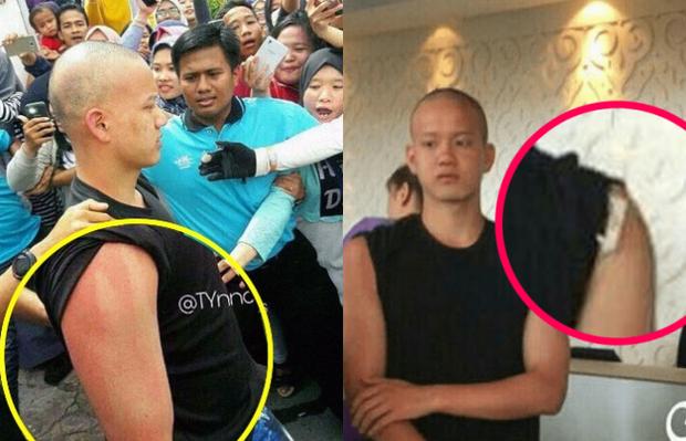 Những lần vấn nạn fan cuồng gây chấn động: Sao châu Á bị sàm sỡ, bạo lực công khai - Ảnh 3.