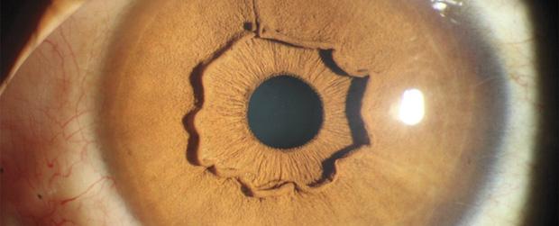 Đây là con mắt của một người, nhưng vì sao lại kỳ dị thế này? - Ảnh 1.