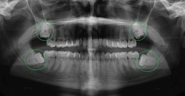 Sở hữu thứ này trong người, bạn sẽ không bao giờ cảm thấy đau phát điên vì mọc răng... ngu - Ảnh 1.