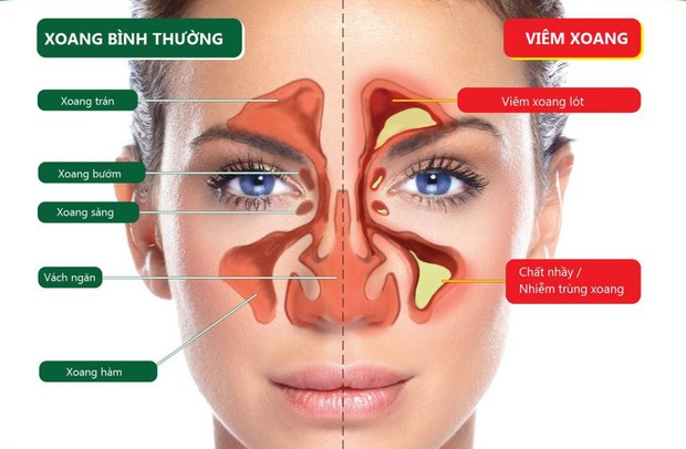 Đề phòng biến chứng nguy hiểm ở mắt nếu chủ quan khi trị bệnh viêm xoang - Ảnh 2.