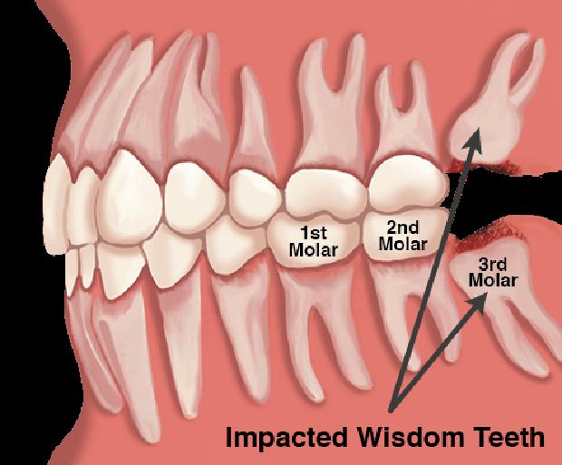 Sở hữu thứ này trong người, bạn sẽ không bao giờ cảm thấy đau phát điên vì mọc răng... ngu - Ảnh 3.