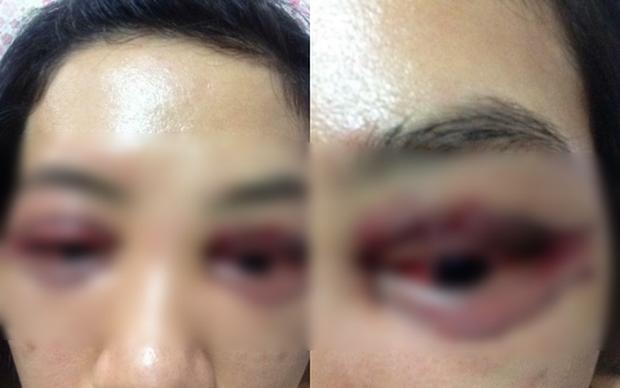 Chủ spa lên tiếng vụ cô gái đi cắt mí mắt gây xôn xao MXH: Tôi không hề thuê mướn ai để dọa nạt khách hàng cả - Ảnh 2.